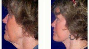 Facelift Before & After With Dr Anna Petropoulos, MD, FRCS, Boston Facial Plastic Surgeon