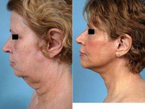 Facelift By Doctor John Y.S. Kim, MD, FACS, Chicago Plastic Surgeon