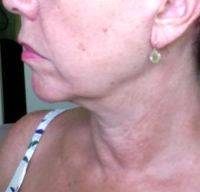 Facelift For Jowls Before And After Photos