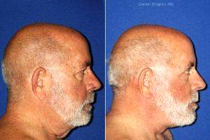 Facelift, Upper And Lower Blepharoplasty With Canthopexy. With Dr Daniel Shapiro, MD, Scottsdale Plastic Surgeon