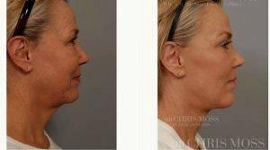 Facelift With Doctor Chris Moss, MBBS, FRACS, Melbourne Plastic Surgeon
