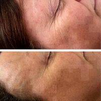 Facelift With Fillers Before And After Image