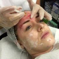 Facelift Without Surgery In Chicago