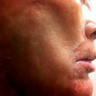 Facial Cosmetic Surgery Patient Picture Results By Dr Jeffrey E. Kyllo