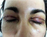 Facial Lift With Blepharoplasty With Doctor Roy A. David