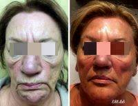 Filler And Botox Can Change Lives