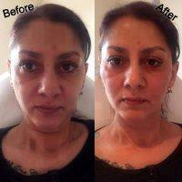 Hyaluronic Acid The Natural Facelift Before And After