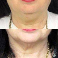 Jaw Line Rejuvenation Photo