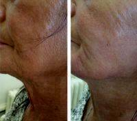 Laser Face Lift In San Diego Before And After