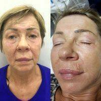 Laser Facelift Chicago Before And After