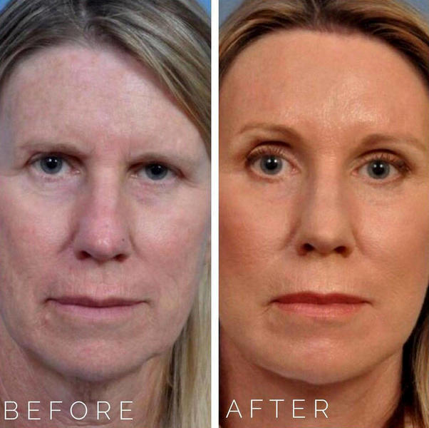 Liquid Facelift With Botox