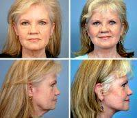 Lower Face Lift Photos Before And After