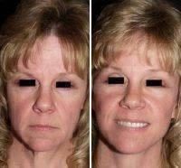 Lower Facelift Also Trims Excess Skin, Smoothing It Down To Eliminate Facial Creases