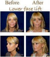 Lower Facelift Before And After Image
