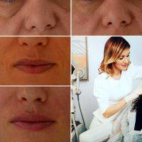 What Is A Lunch Hour Facelift? » Facelift: Info, Prices