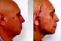 Male Full Face Lift