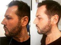 Male Lower Facelift Before And After