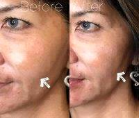 Midface Lift With HA