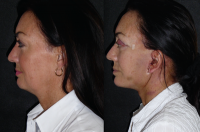 Mini Face And Neck Lift Before And After Photos By Dr Leonard Miller