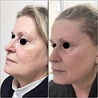 Mini Facelift New York Before And After