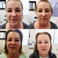 NYC Rhytidectomy Before After