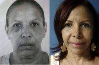 Natural-Looking Results After Facelift