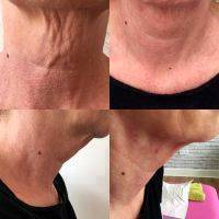 Neck Lift In Chicago Before And After