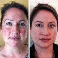 Non Invasive Facelift Results