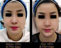 Non Surgical Facelift HIFU & Filler Dagu