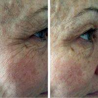 Non Surgical Facelift To Remove Wrinkles