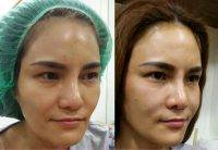 One Stitch Facelift Before And After (1)