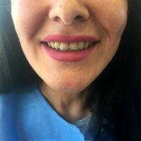 One Stitch Facelift Before And After (10)