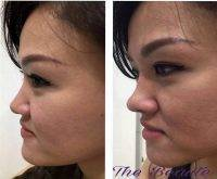One Stitch Facelift Before And After (11)