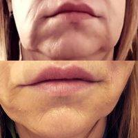One Stitch Facelift Before And After (13)
