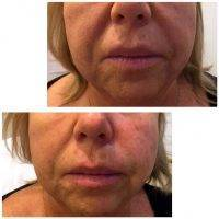 One Stitch Facelift Before And After (19)