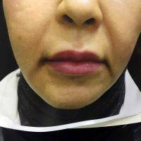 One Stitch Facelift Before And After (20)