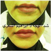 One Stitch Facelift Before And After (4)