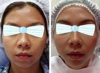 One Stitch Facelift Before And After (5)