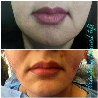 One Stitch Facelift Before And After (6)