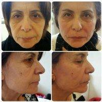 One Stitch Facelift Before And After (8)