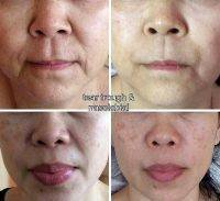 One Stitch Facelift Before And After Photos (1)