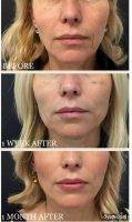 One Stitch Facelift Before And After Photos (15)