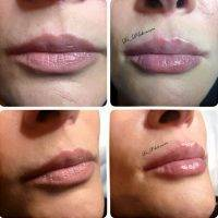 One Stitch Facelift Before And After Photos (16)