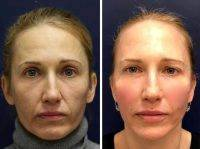 One Stitch Facelift Before And After Photos (19)