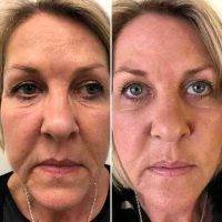 One Stitch Facelift Before And After Photos (3)