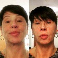One Stitch Facelift Before And After Photos (4)
