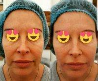 One Stitch Facelift Before And After Photos (5)