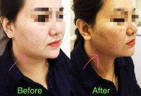 One Stitch Facelift Before And After Photos (8)