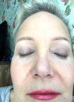 One Stitch SMAS Facelift Before And After (1)