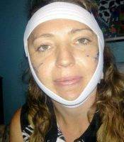 Recovery After Cervicofacial Rhytidectomy